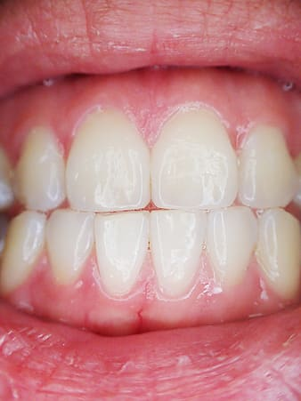 Closeup photo of person's teeth
