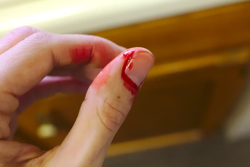 Close-up photography of fingernail with blood