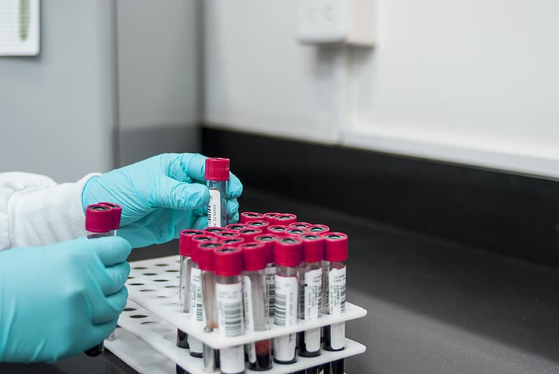 Person placing blood test tube on rack