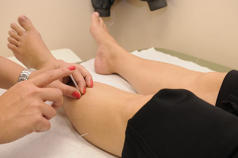 Person performing acupuncture on both legs